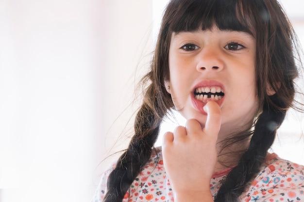 Close-up van een meisje dat haar gebroken tanden toont Gratis Foto