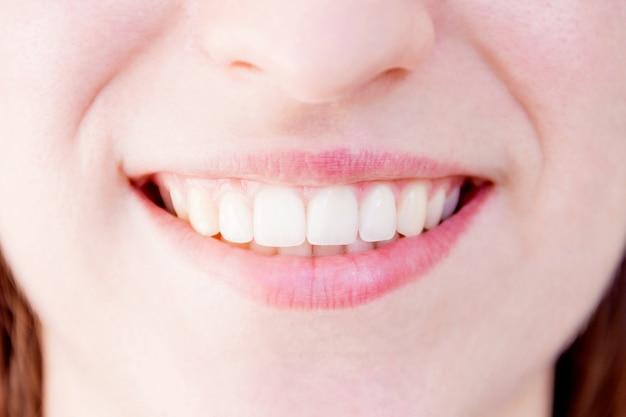 Close-up van gezonde witte tanden van lachende vrouw teef Premium Foto