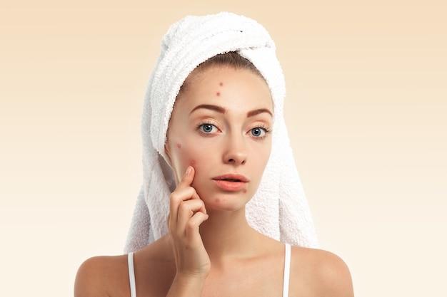 Close-up van jonge vrouw met handdoek op hoofd en puistjes op gezicht Gratis Foto