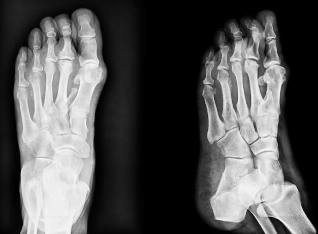 Close-upbeeld van klassiek xray beeld van voeten Premium Foto
