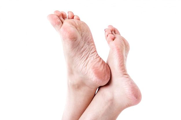 Droge gedehydrateerde huid op de hielen van vrouwelijke voeten met eelt Premium Foto