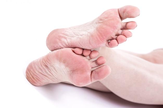 Droge uitgedroogde huid op de hielen van vrouwelijke voeten met eelt Premium Foto
