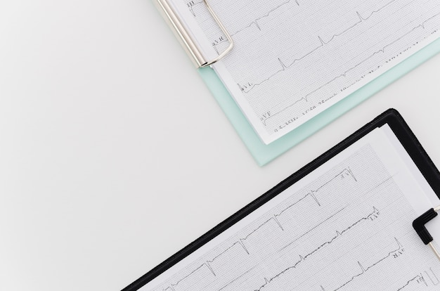 Een bovenaanzicht van ecg medisch rapport over blauwe en zwarte klembord op witte achtergrond Gratis Foto