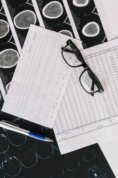 Een bovenaanzicht van mri-scan met rapporten; pen en zwarte bril Gratis Foto