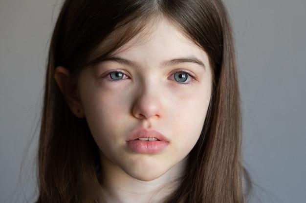 Een klein meisje met rode waterige ogen, een virus, koude, gezwollen ogen, een allergie Premium Foto