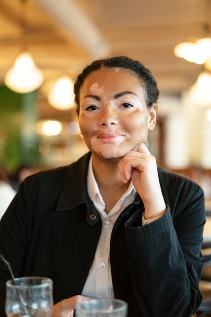 Een mooi jong meisje van het afrikaanse behoren tot een bepaald ras met vitiligozitting in een restaurant Premium Foto