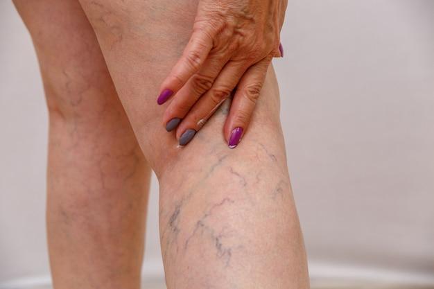Een oudere vrouw smeert een crème of zalf op haar been op een licht geïsoleerde achtergrond. Premium Foto