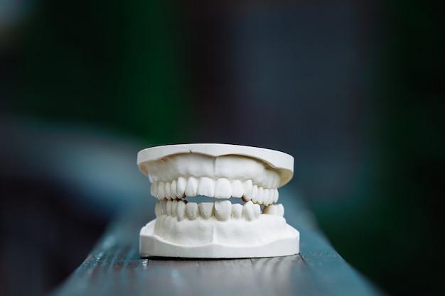 Een plastic model van de kaak voor protheses op tafel Premium Foto