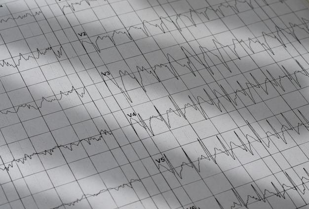 Elektrocardiogram grafiek Premium Foto