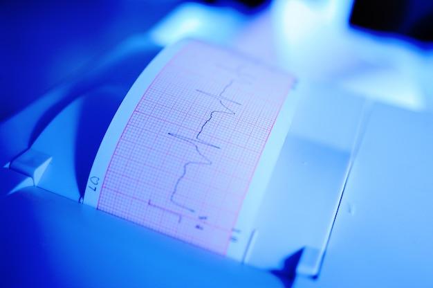 Elektrocardiogram in verpleegster overhandigt close-up Premium Foto