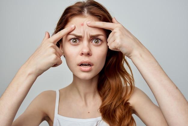 Emotionele vrouw puistjes op voorhoofd dermatologie ontevredenheid huidproblemen Premium Foto
