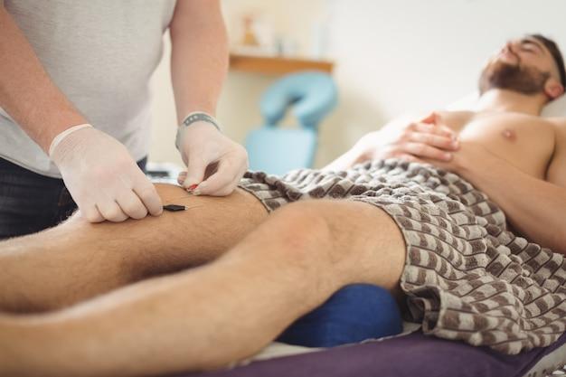 Fysiotherapeut die droge needling op de knie van een patiënt uitvoeren Gratis Foto
