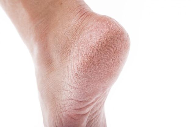 Gedehydrateerde huid op de hielen van vrouwelijke voeten Premium Foto