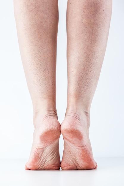 Gedehydrateerde huid vrouwelijke hielen Premium Foto