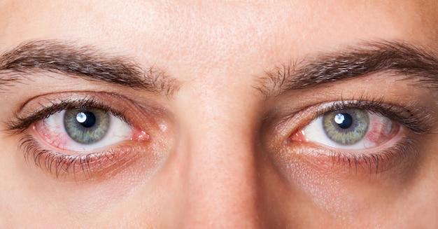 Geïrriteerde rode bloeddoorlopen ogen Premium Foto
