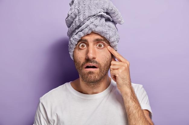 Geschokte man merkt acne op het gezicht, heeft afgeluisterde ogen, borstelharen, geeft om de huid, draagt een omwikkelde handdoek, casual t-shirt Gratis Foto