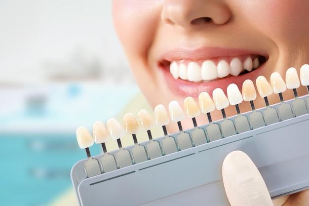 Glimlachende jonge vrouw. cosmetologische tanden bleken in een tandheelkundige kliniek. selectie van de toon van de implantaattand. Premium Foto