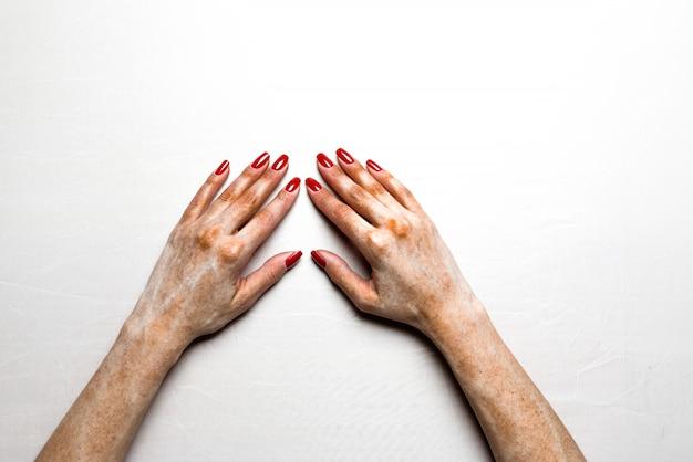 Handen met pijnlijke huid op een witte achtergrond. Premium Foto