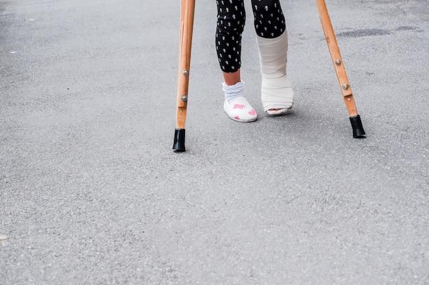 Het kind die steunpilaren en gebroken benen gebruiken voor openlucht lopen, sluit omhoog. gebroken been, houten krukken, enkelblessure. Premium Foto
