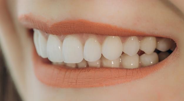 Hollywood-glimlach met porseleinen kronen en fineer Premium Foto