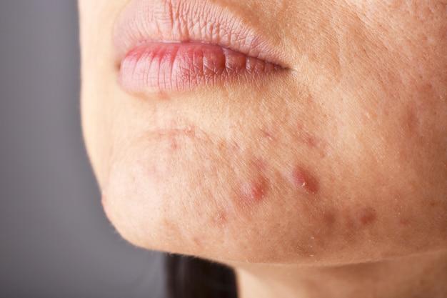 Huidprobleem met acne-ziekten, close-up van het gezicht van de vrouw met whitehead puistjes op de kin, menstruatie, litteken en olieachtig vettig gezicht. Premium Foto