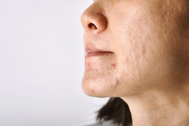 Huidprobleem met acneziekten litteken en olieachtig vettig gezicht Premium Foto