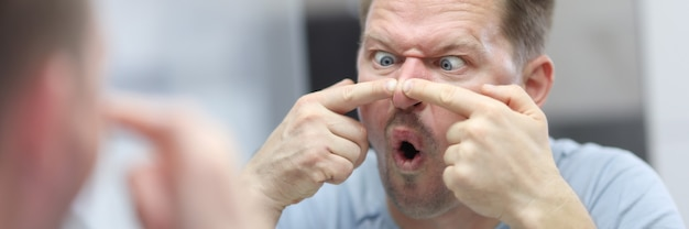 Jonge man kijkt in de spiegel en drukt puistjes op zijn neus. gezichtsverzorging van de huid thuis concept. Premium Foto