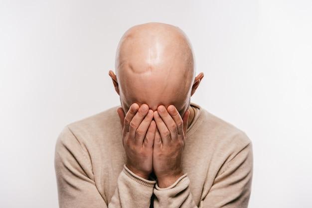 Kale man met litteken op zijn hoofd na oncologie operatie huilen en zijn gezicht verbergen met zijn handen. Premium Foto