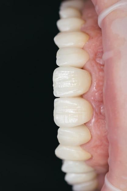 Keramisch zirkonium in definitieve versie. kleuring en beglazing. nauwkeurig ontwerp en hoogwaardige materialen. tandheelkundige zorg. Premium Foto