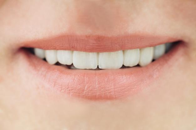 Keramische kronen van menselijke tanden close-up macro. het concept esthetische tandheelkunde. Premium Foto