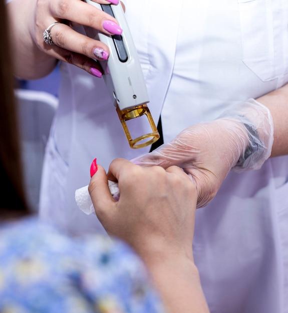 Laserepilatie van handen en vingers. Gratis Foto