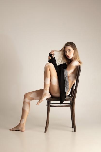 Lichaam van mooie jonge vrouw met vitiligo. auto immuunziekte. gebrek aan huidpigmentatie. inclusieve schoonheid. Gratis Foto