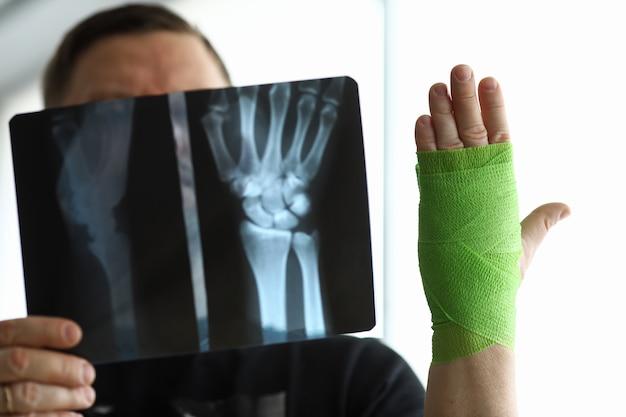 Mannelijke patiënt in de hand houden ct-scan van zijn gebroken arm op afspraak arts Premium Foto