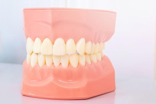 Model van de mondholte, kaakmodel voor stomatologische klinieken. Premium Foto