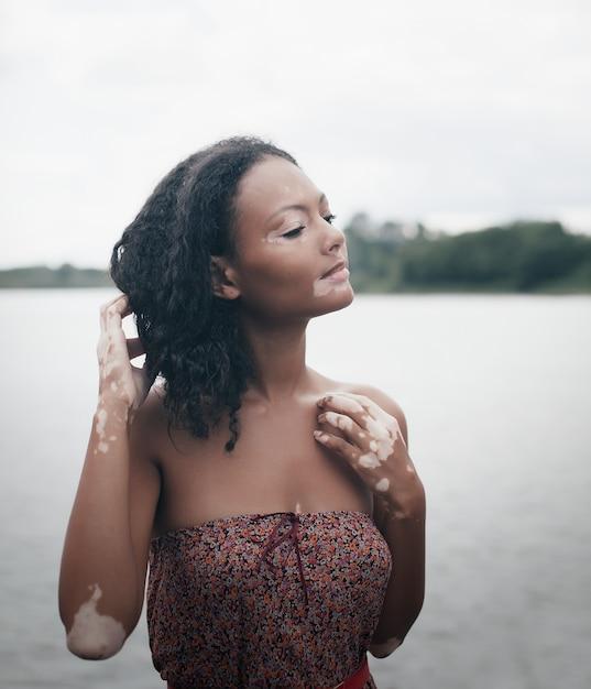 Mooie jonge brunette vrouw met vitiligo ziekte Premium Foto