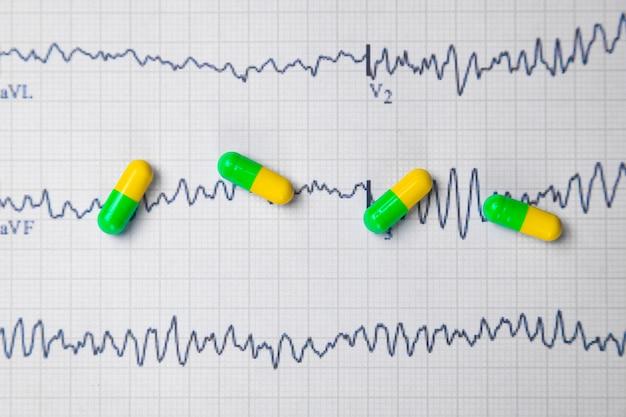 Multi-gekleurde tabletten op een blad van elektrocardiogram Premium Foto