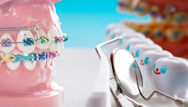 Orthodontisch model en tandartsgereedschap - demonstratietandenmodel van verschillende orthodontische beugels of beugels Premium Foto