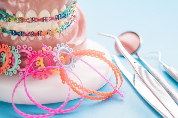 Orthodontisch model en tandartshulpmiddel Premium Foto