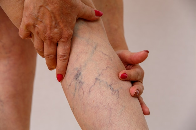 Oudere vrouw in wit slipje toont cellulitis en spataderen op een licht geïsoleerde achtergrond. Premium Foto