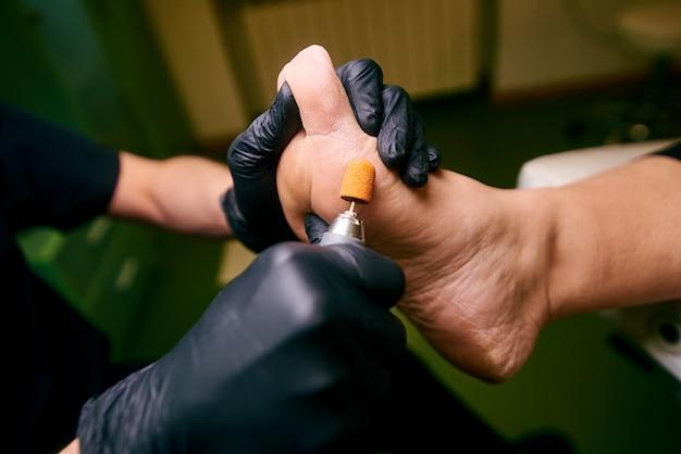 Podologie, behandeling van de aangetaste delen van de voeten, medisch kantoor, pedicure, beschadigde huid Premium Foto
