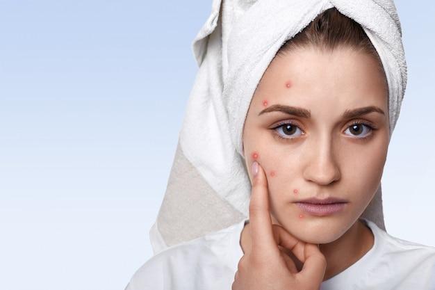 Portret dat van jonge vrouw die probleemhuid en puistje op haar wang heeft, handdoek op haar hoofd draagt dat het droevige uitdrukking richten heeft Gratis Foto