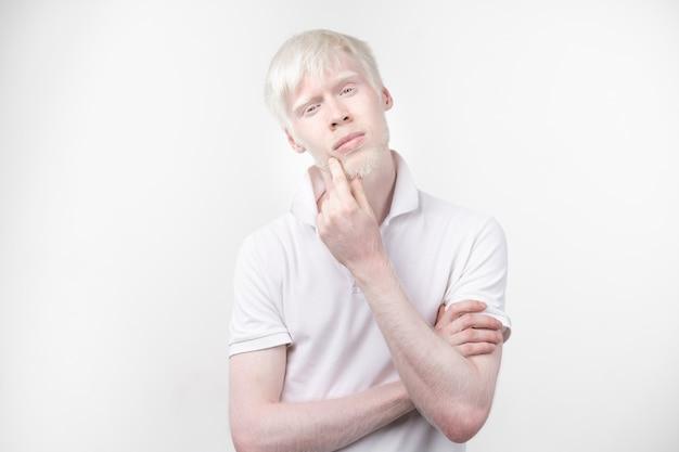 Portret van een albinomens in studio geklede die t-shirt op een witte achtergrond wordt geïsoleerd. abnormale afwijkingen. ongewoon uiterlijk. huidafwijking Premium Foto