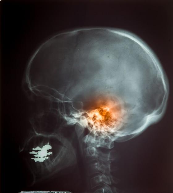 Röntgenfilm voor menselijke schedel Premium Foto