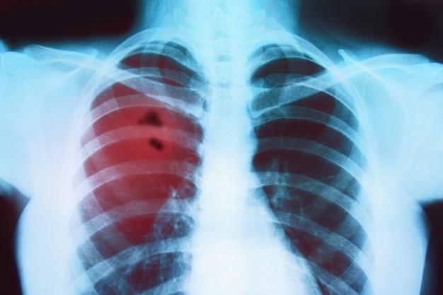 Röntgenfoto van de longen van een zieke Premium Foto