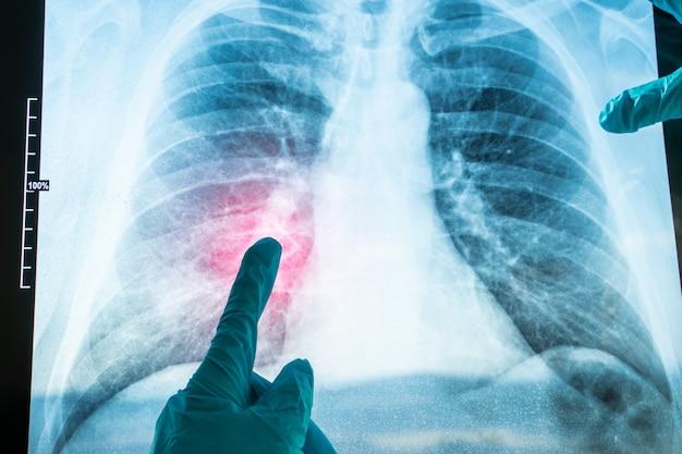 Röntgenfoto van de menselijke borst voor een medische diagnose. coronavirus-covid-19. epidemisch virus 2019-ncov-ademhalingssyndroom. Premium Foto