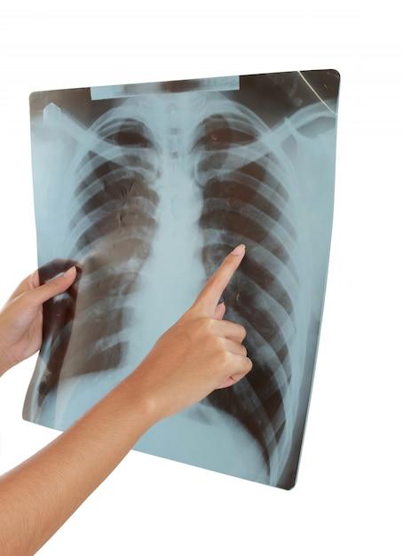 Röntgenfoto van een menselijke thorax. Premium Foto