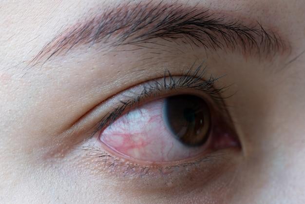 Rood oog van de vrouw, conjunctivitis oog of na huilen Premium Foto