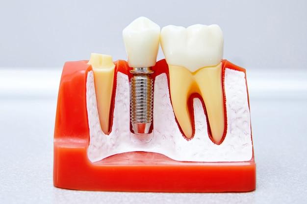 Sectie van een tandheelkundig implantaat Premium Foto