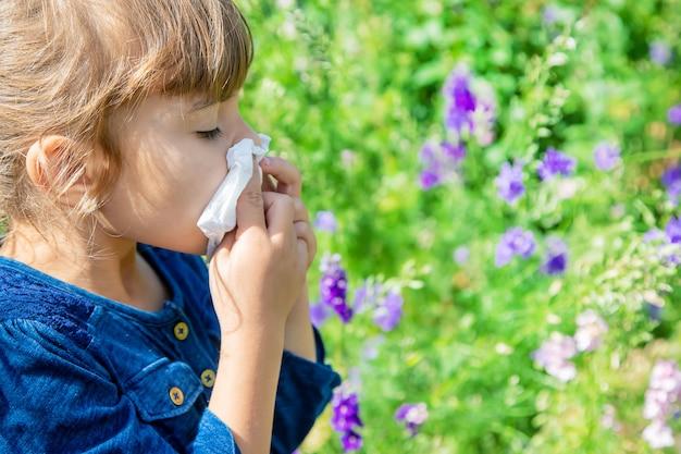 Seizoensgebonden allergie bij een kind. coryza. Premium Foto