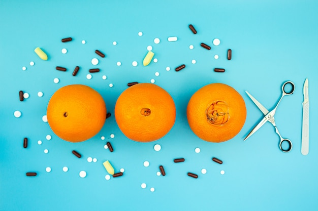 Sinaasappelen met een grote navel, pillen, scalpel en schaar op een blauwe achtergrond. concept van verschillende stadia van aambeien. chirurgische behandeling van aambeien. Premium Foto